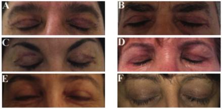 crema naturale trattamento cicatrici